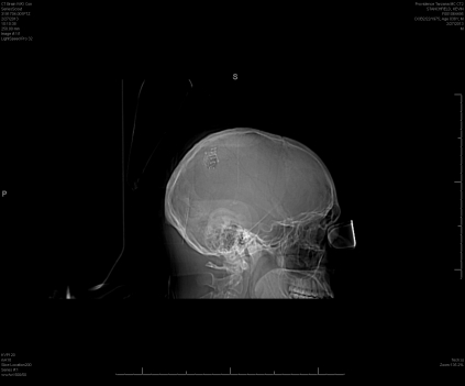 CT scan showing titanium plate used to repair my craniotomy.